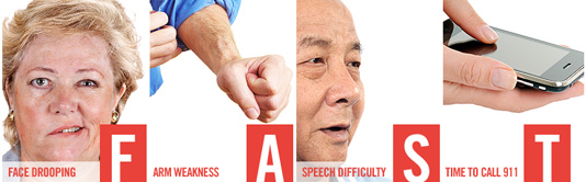Stroke FAST symptoms
